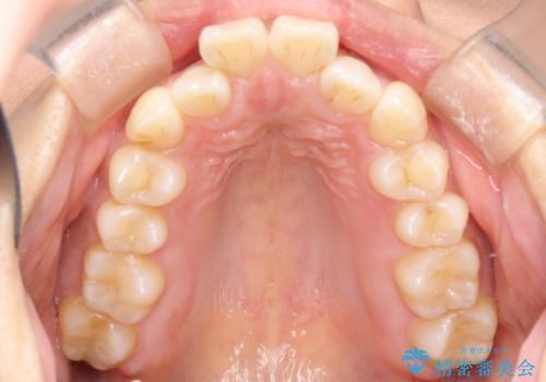 インビザライン治療 ガタつきの改善と一緒に、なるべく前歯を下げたいの症例 治療前