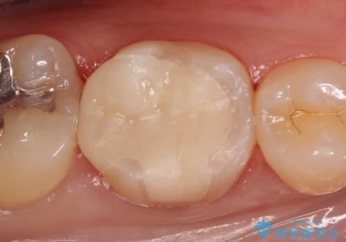 セラミックインレー 虫歯治療の治療後