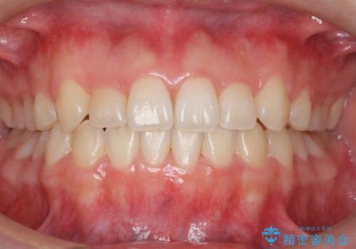 マウスピース矯正 前歯が後ろに引っ込んでいるのを、半年での治療後