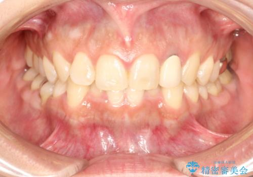 前歯の被せものをやりかえたいの症例 治療前