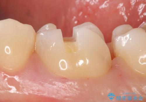 PGA(ゴールド)インレー 虫歯治療の治療中