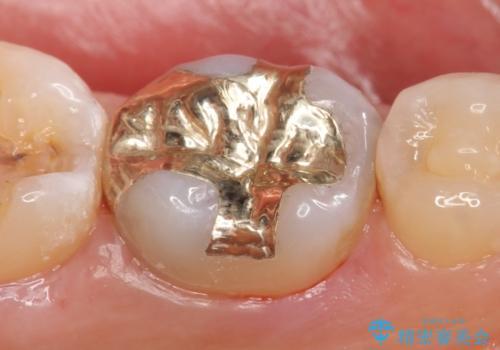 PGA(ゴールド)インレー 虫歯治療の治療後
