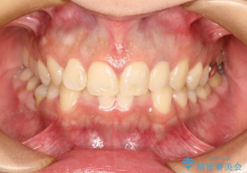 前歯の被せものをやりかえたいの症例 治療後