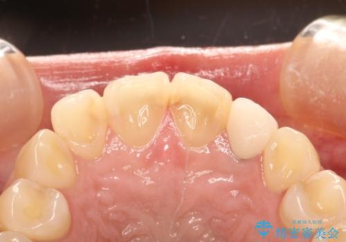 前歯の被せものをやりかえたいの治療後
