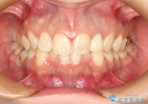 前歯の被せものをやりかえたいの治療中