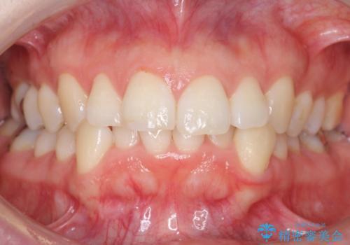 30代女性 インビザラインで前歯をキレイに マウスピース矯正の治療前