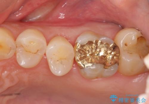欠けた歯の修復 ゴールドインレーの治療後