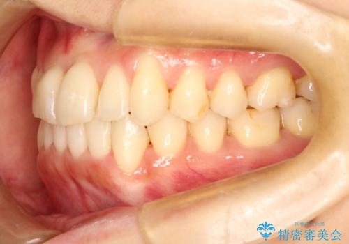 インビザラインで飛び出た歯をキレイに並べるの治療中