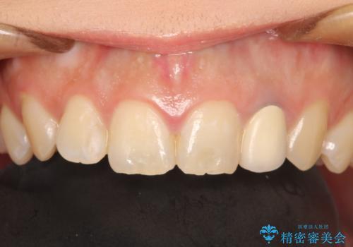 前歯の被せものをやりかえたいの治療前