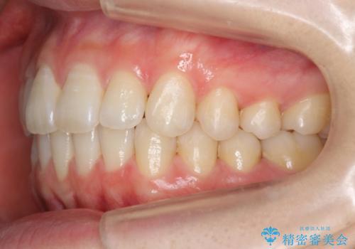 前歯のわずかなねじれ 歯を削らずマウスピースで インビザライン・ライトで手軽にの治療後