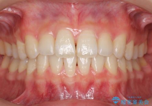 前歯のわずかなねじれ 歯を削らずマウスピースで インビザライン・ライトで手軽にの症例 治療後