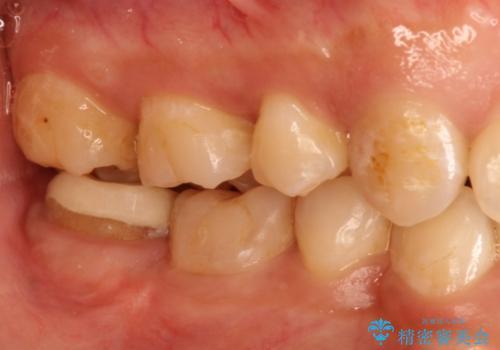 治療してもすぐに外れる歯。歯周外科後に、セラミッククラウンで解決!の治療中