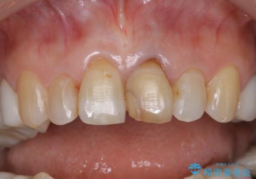 咬み合わせの修正を含めた前歯のオールセラミック修復 神経のない歯は根管治療からの治療中