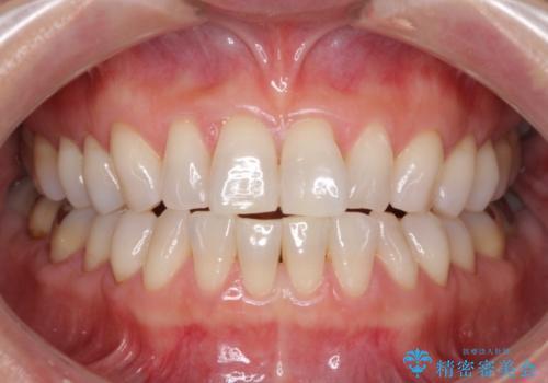 セラミックインレー メタルフリーで明るい口元にの治療前