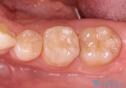精度の高いむし歯治療。の症例 治療前