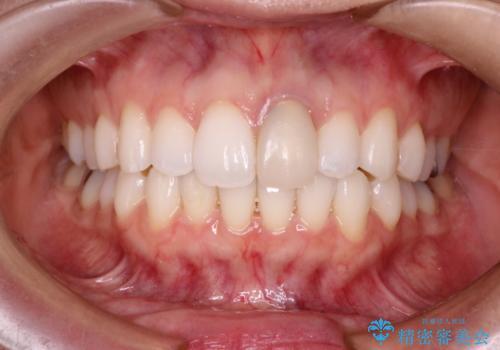 仮歯のままであった歯をセラミックへの症例 治療前