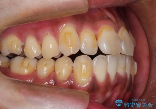 マウスピース矯正の代名詞 インビザラインによる前歯のクロスバイト治療の治療中