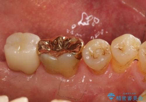 古い材料が欠けてしまった奥歯の修復補綴の治療後
