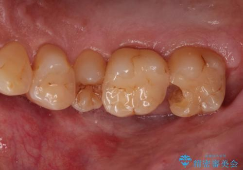 つめものが欠けた 奥歯のセラミックインレーの症例 治療前