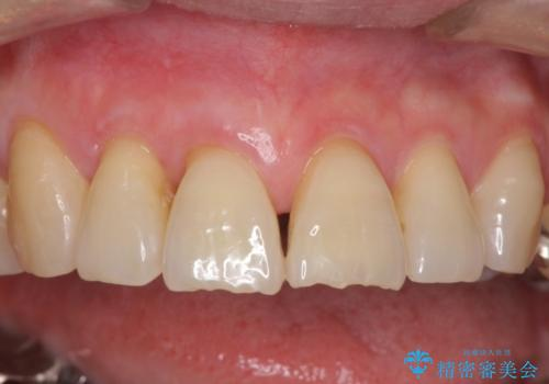 歯ぐきがこれ以上下がるのがいやだ 歯肉移植による根面被覆と歯肉退縮の予防の症例 治療後
