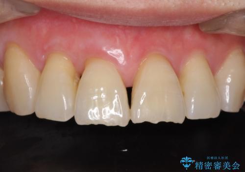 歯ぐきがこれ以上下がるのがいやだ 歯肉移植による根面被覆と歯肉退縮の予防の治療後