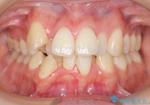 右だけ八重歯 最少限の抜歯の治療前