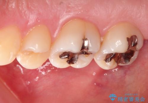 矯正後により美しい歯への治療前