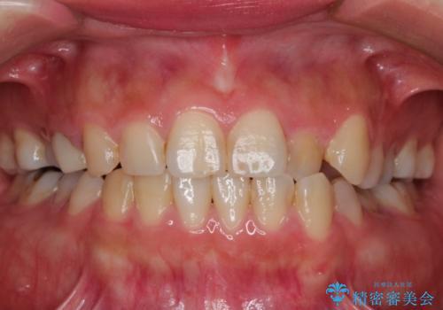 前歯が痛い。神経の治療とセラミッククラウンの治療前