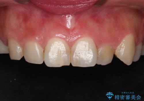 前歯が痛い。神経の治療とセラミッククラウンの症例 治療前