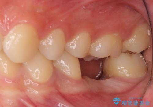 歯の根が割れた インプラント治療によるかみ合わせの回復の治療中