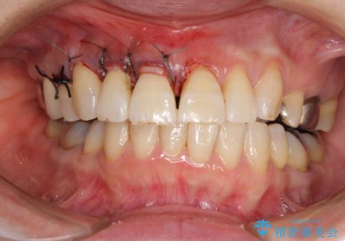 歯ぐきがこれ以上下がるのがいやだ 歯肉移植による根面被覆と歯肉退縮の予防の治療中