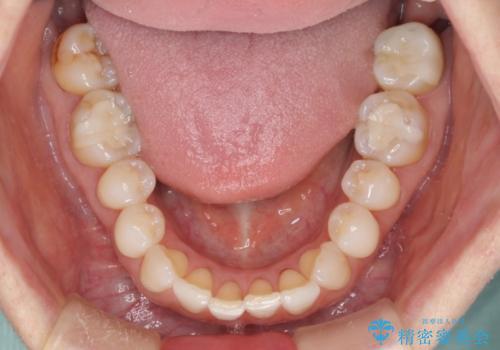 セラミックインレー メタルフリーで明るい口元にの治療後