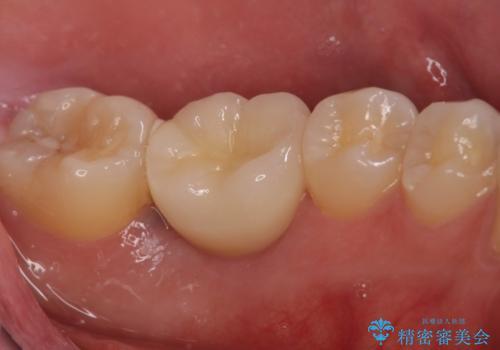 歯の根が割れた インプラント治療によるかみ合わせの回復の治療後