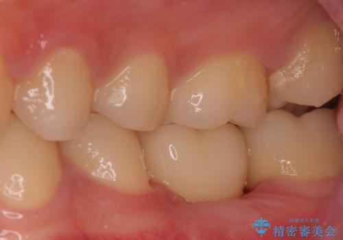 歯の根が割れた インプラント治療によるかみ合わせの回復の症例 治療後