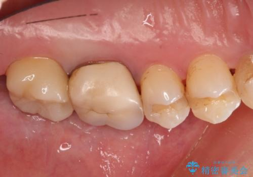 奥歯にものが詰まる 最後方臼歯の被せもので改善するの治療後