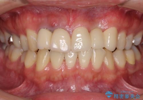 転勤する前に前歯を治したい 抜歯とセラミックブリッジの治療後