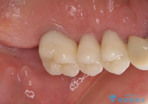 部分矯正による咬合平面の改善 オールセラミッククラウンとノンクラスプデンチャーの治療後