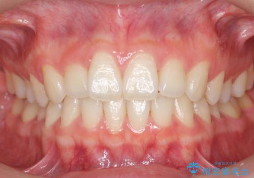 前歯のわずかなねじれ 歯を削らずマウスピースで インビザライン・ライトで手軽にの症例 治療前