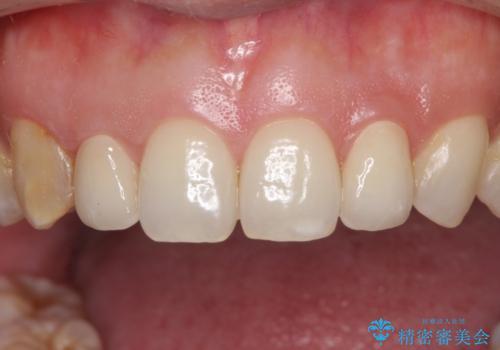 前歯の歯並びと小さい歯を改善 インビザラインとオールセラミッククラウンの治療後