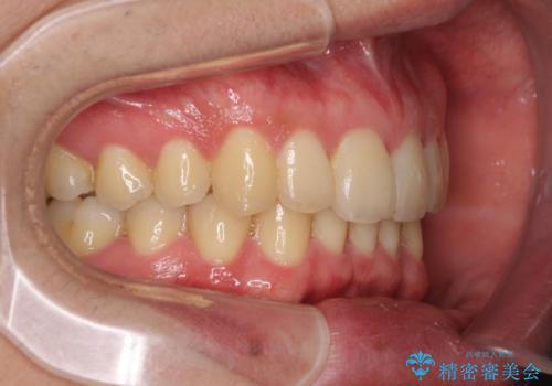 前歯のでこぼこを治したい ワイヤー矯正からインビザラインへのチェンジの治療後