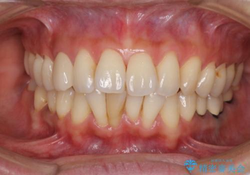 変色した前歯をセラミッククラウンで自然な前歯にの治療後