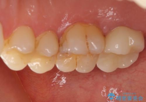 治療途中の奥歯をセラミックに 根管治療と審美歯科治療の治療後