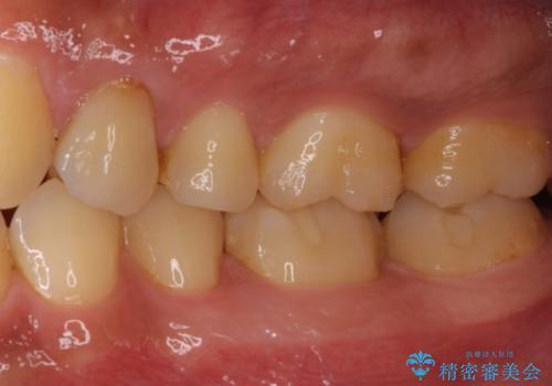 かけてしまった奥歯 セラミックインレーで改善の治療前