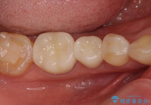 奥の銀歯をきれいにしたい オールセラミッククラウンによる審美歯科治療の治療後