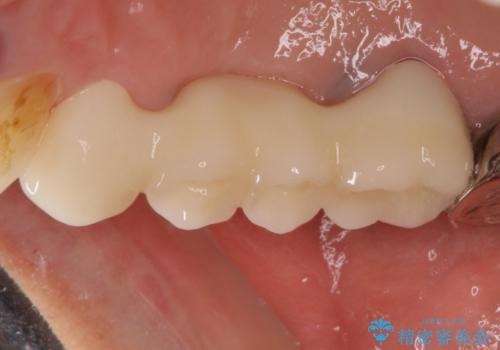 折れてしまった歯 歯周外科処置を伴うオールセラミックブリッジ治療の治療後