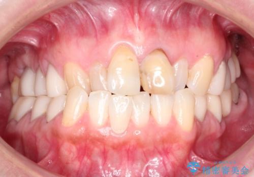 咬み合わせの修正を含めた前歯のオールセラミック修復 神経のない歯は根管治療からの治療前