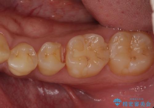 かけてしまった奥歯 セラミックインレーで改善の治療中