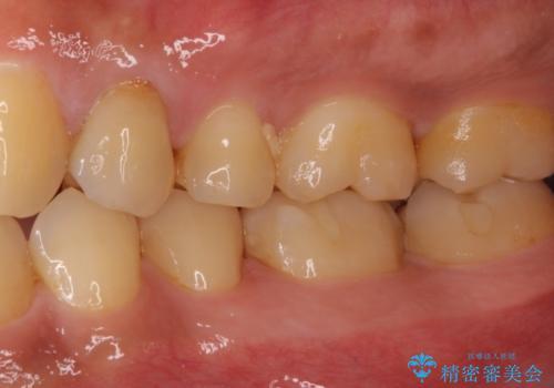 かけてしまった奥歯 セラミックインレーで改善の治療後
