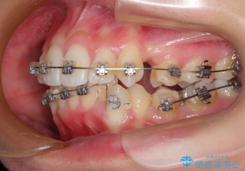 前歯のガタガタをキレイに (費用を抑えたメタル装置)の治療中