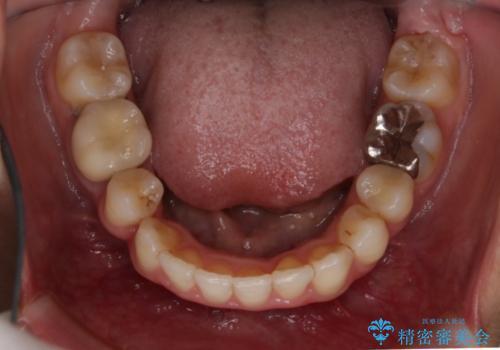 前歯のガタガタをキレイに (費用を抑えたメタル装置)の治療後